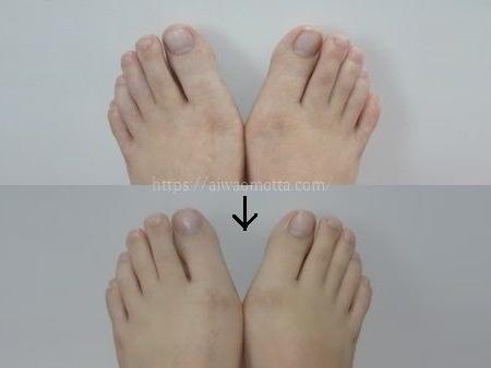 外反母趾包帯治療前と半年後の画像