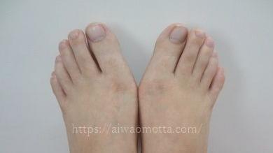 包帯治療する前の外反母趾の足の画像