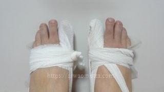 包帯を巻いた外反母趾の足の画像