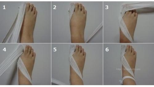 外反母趾の包帯の巻き方順番画像