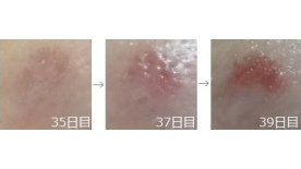 液体窒素治療の経過画像3