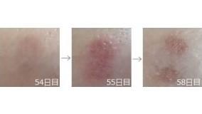 液体窒素治療の経過画像4