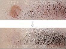 液体窒素治療の結果画像