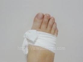 外反母趾の右足にエラスコット弾力包帯を巻いた画像