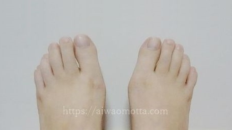 外反母趾包帯治療2年後の画像